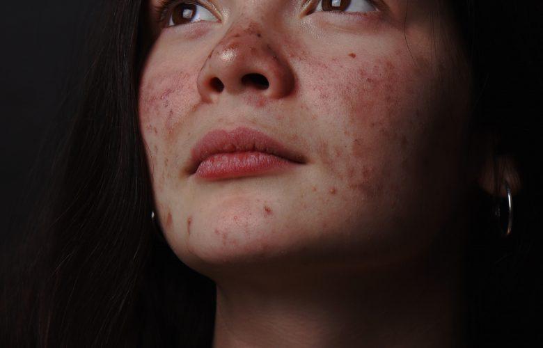 Unge deler oplevelser med akne som aldrig før